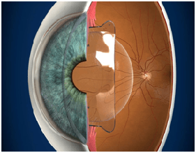 Implantable-Contact-Lens-Img
