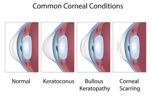 corneal-conditions